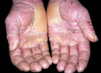 Contact Dermatitis is not Contagious