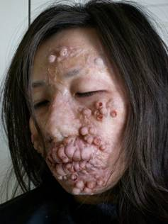 Leprosy is a Contagious Disease