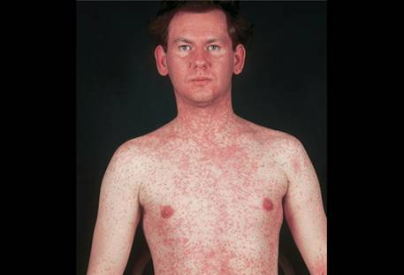 Measles is Viral Born and Exceedingly Contagious
